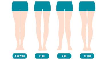 女性必見!日本人に多いO脚とは